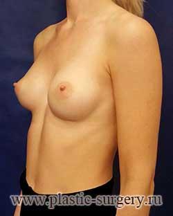 увеличение груди фото в нижневартовске