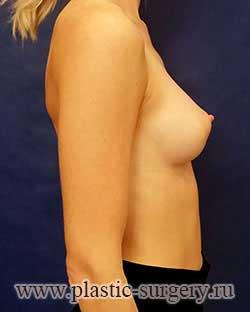 операция по увеличению груди в сургуте