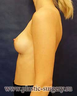 операция по увеличению груди в нижневартовске
