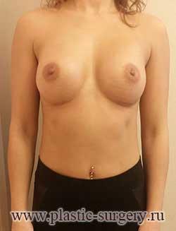 увеличение грудных желез цена в екатеринбурге