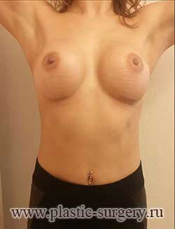 увеличение грудных желез цена в тюмени