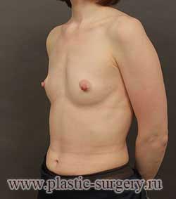 сколько стоит грудь в тюмени
