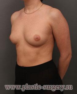 увеличение груди фото в сургуте