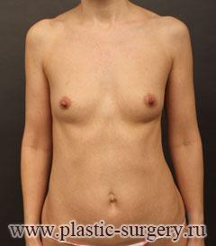операция по увеличению груди в екатеринбурге