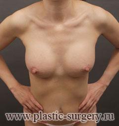 операция по увеличению груди в тюмени