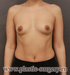 лучшее увеличение груди в челябинске
