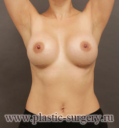 лучшее увеличение груди в перми