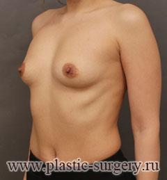 лучшее увеличение груди в москве