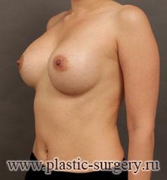 лучшее увеличение груди в новосибирске