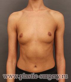 увеличение груди отзывы в челябинске