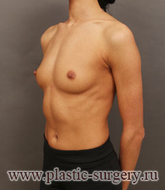 увеличение груди стоит в казани