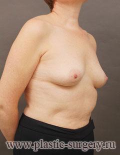увеличение размера груди в новосибирске