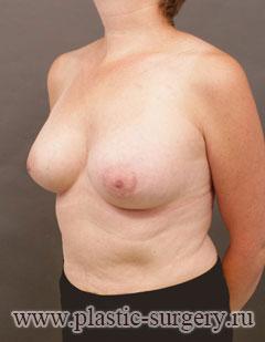 увеличение груди имплантами в новосибирске