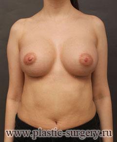 увеличение груди фото в екатеринбурге