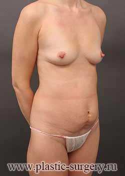 сколько стоит сделать грудь в екатеринбурге