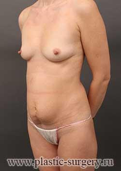 сколько стоит сделать грудь в тюмени