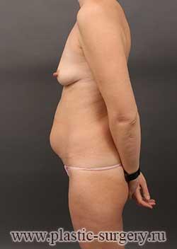 сколько стоит сделать грудь в перми