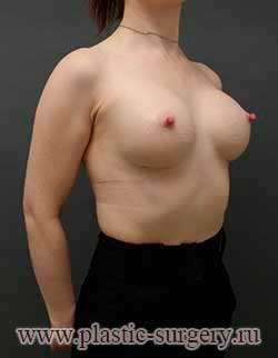 пластическая операция по увеличению молочных желез в перми