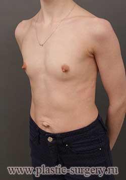 сколько стоит грудь в перми