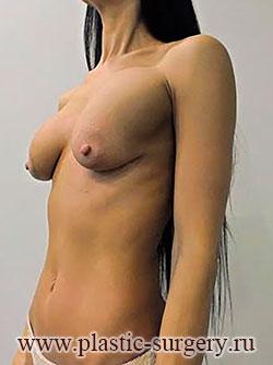 сколько стоит грудь в челябинске