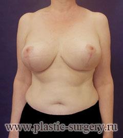 Как можно визуально увеличить грудь в купальнике