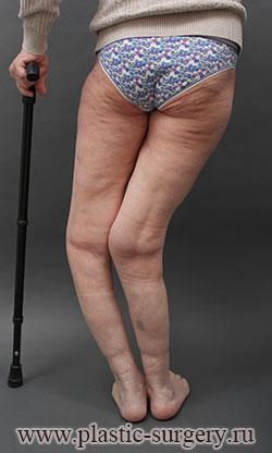 Замена коленного сустава екатеринбург истончение суставного хряща лечение