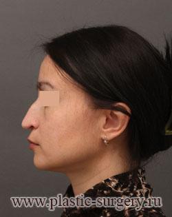 операция на нос в тюмени
