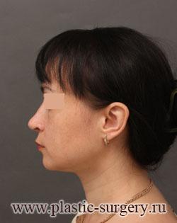 пластическая операция на нос в тюмени