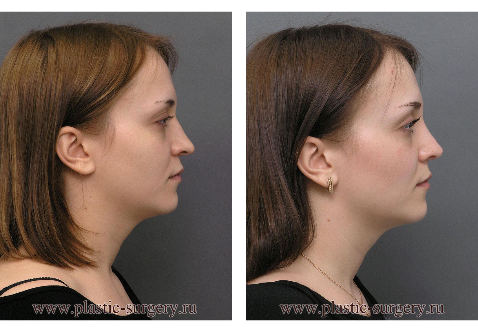 Ринопластика носа в оренбурге отзывы