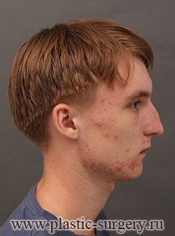 Ринопластика крупный кончик носа