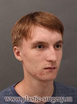 пластическая операция на нос в екатеринбурге