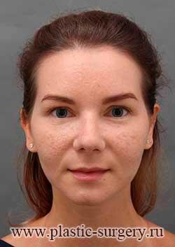 ринопластика фото в тюмени