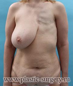 Упражнения для увеличения груди мужскую