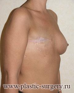 Пластическая операция по увеличению грудей отзывы