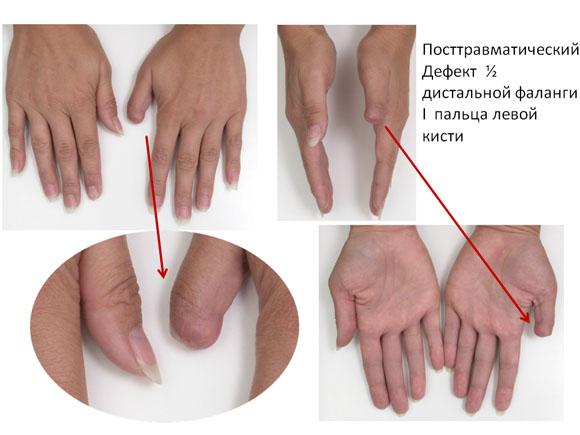 почему сустав на руке длится inflamația articulațiilor scoarței de salcie