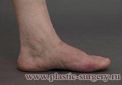 плосковальгусная деформация стопы