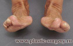 вальгусная деформация больших пальцев стоп