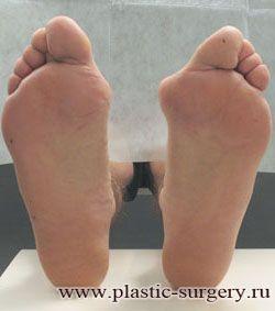 вальгусная деформация пальцев стоп