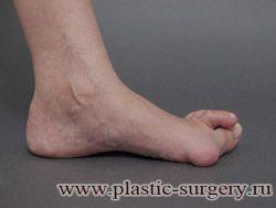 вальгусная деформация стопы лечение