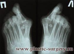 вальгусная деформация стопы операция
