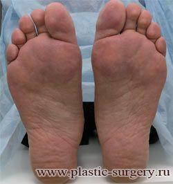 вальгусная деформация пальца стопы екатеринбург